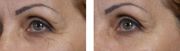 lamiderm testimonials crows feet