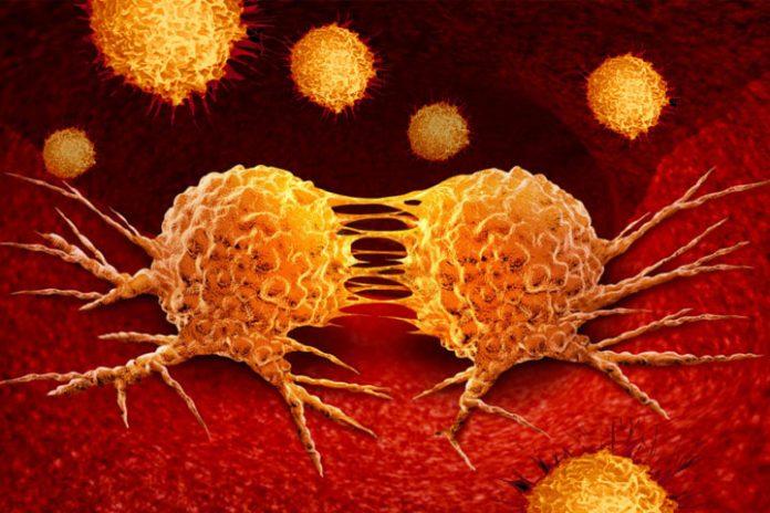metastasis cancer